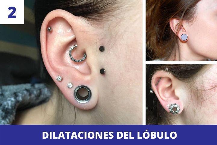 dilataciones-lobulo